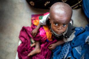 malnutrition sévère aiguë dans le Grand Kasaï